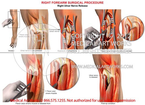 Right ulnar nerve release