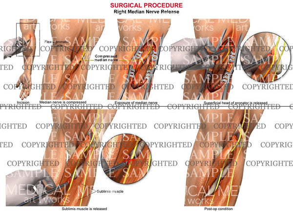Right median nerve release