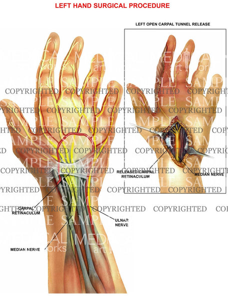 Left hand carpal tunnel procedure