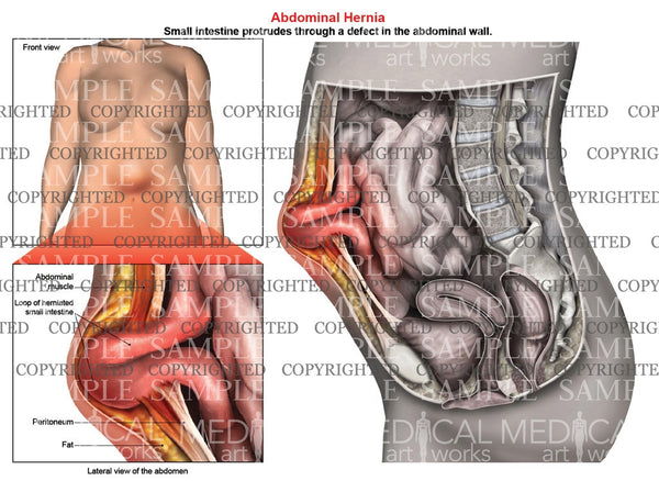 Abdominal Hernia Anatomy Of Female Medical Art Works