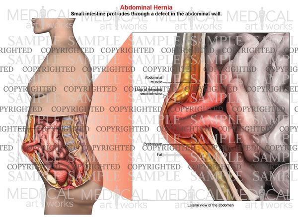 Abdominal Hernia Anatomy Of Female Lateral View Medical Art Works