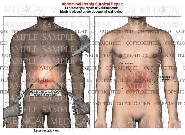 Abdominal ventral hernia mesh repair of a male, front view