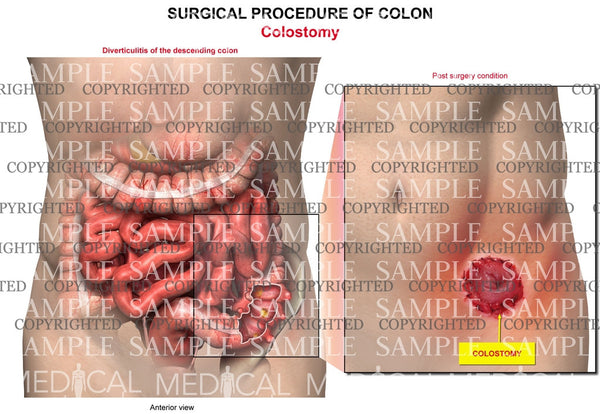 Descending colon surgery