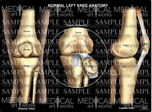 Normal Left Knee Anatomy 6