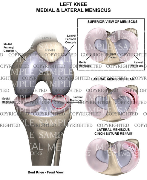 Left knee meniscus tear and repair