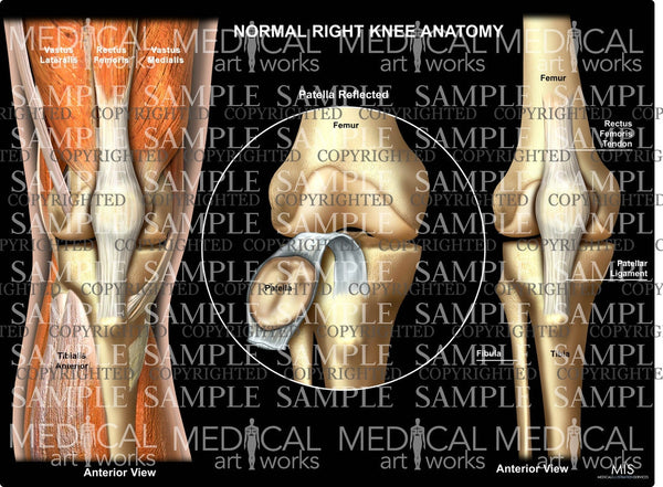Normal Right Knee Anatomy 4