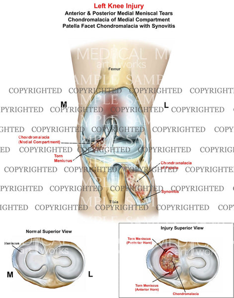 Left Knee Injury anterior and posterior medial mensicus tear - chondromalacia