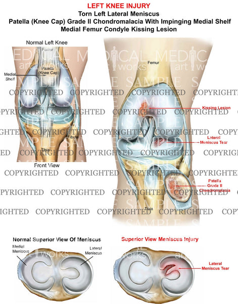 left Knee Injury of the patella and meniscus tear
