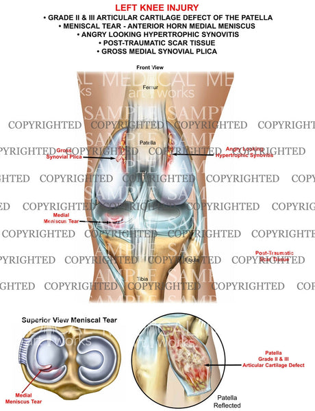 Left knee Injury of the patella and meniscus with synovitis