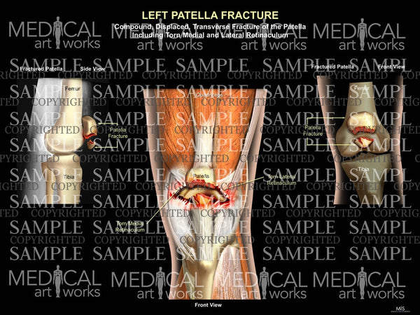 Left Patella Fracture