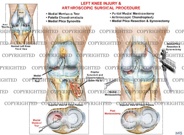Left knee multiple injuries - meniscus tear - chondromalacia - synovitis and surgical repair