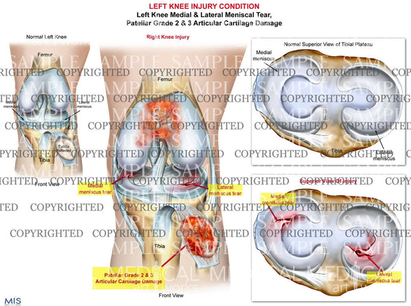 Left Knee Injury Medial & Lateral Meniscal Tear - Patella damage