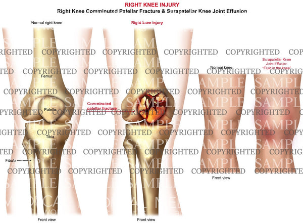 Right knee comminuted patella fracture