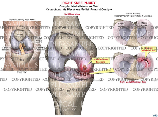 Right Knee Injury 2