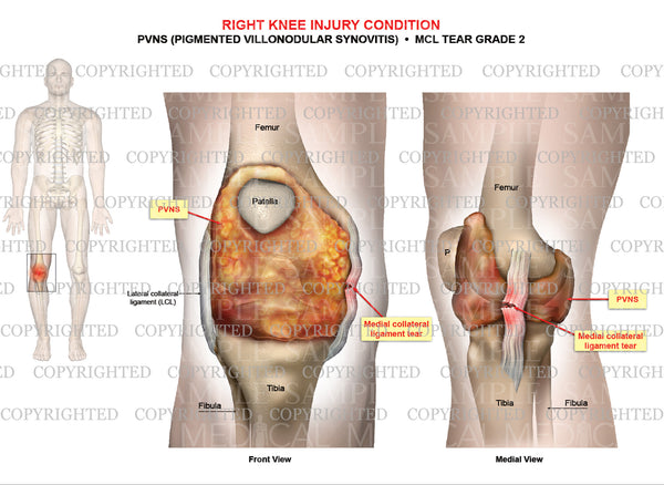 Right knee injury - PVNS ((Pigmented Villonodular Synovitis) - MCL tear grade 2