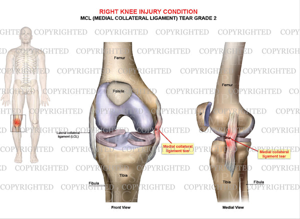 Right knee injury - MCL tear grade 2 - Male