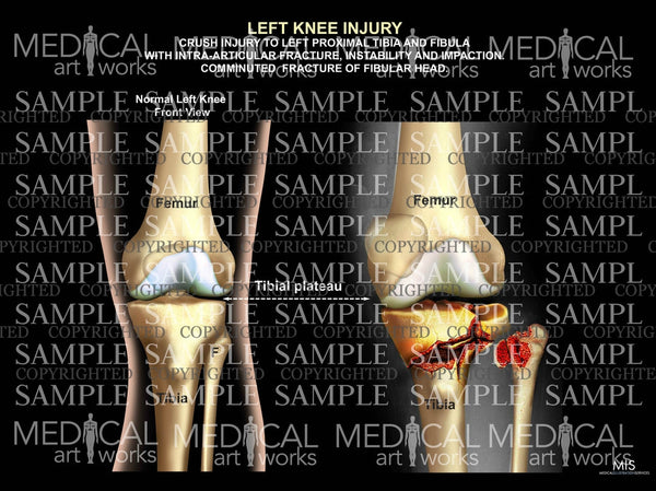 Left Knee Injury of tibia and fibula