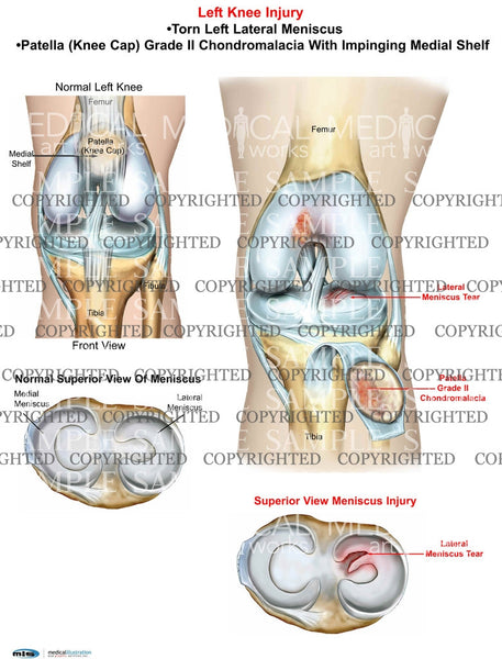Left Knee lateral meniscus tear and Chondromalacia