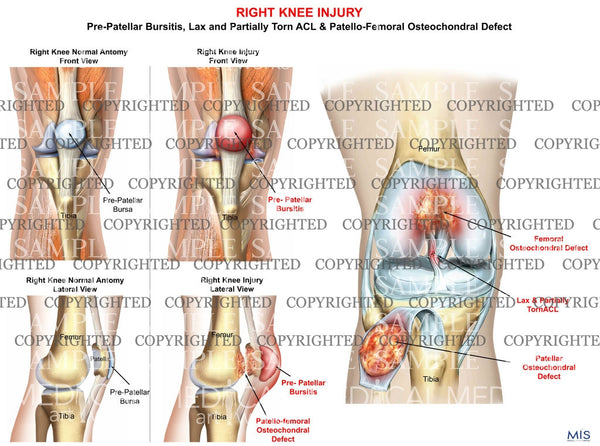 Right Knee Injury Pre-Patellar Bursitis and Patellofemoral Osteochondral Defect