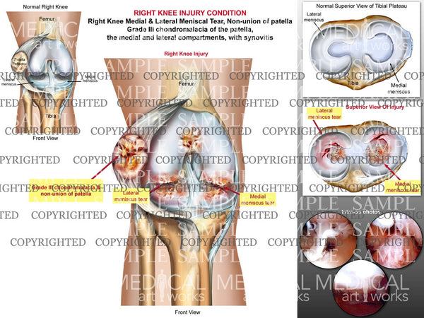 Right Knee Surgical Injury condition