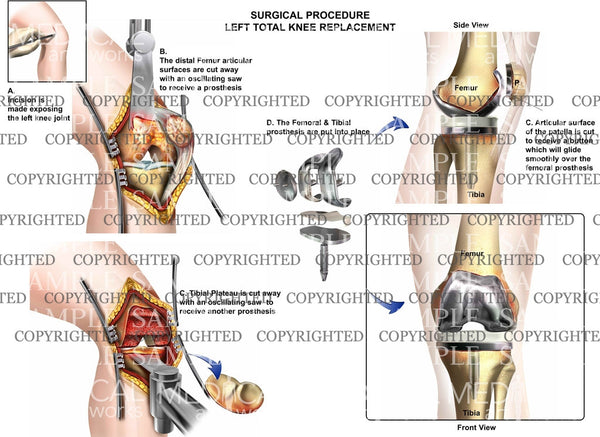 Total Left Knee Replacement