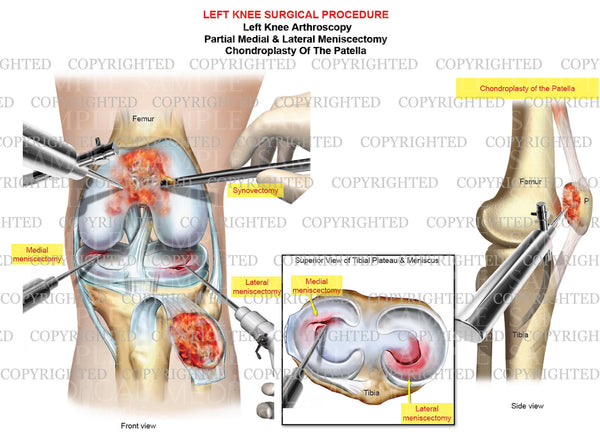 Left knee arthroscopic sugery - medial meniscectomy - chondroplasty