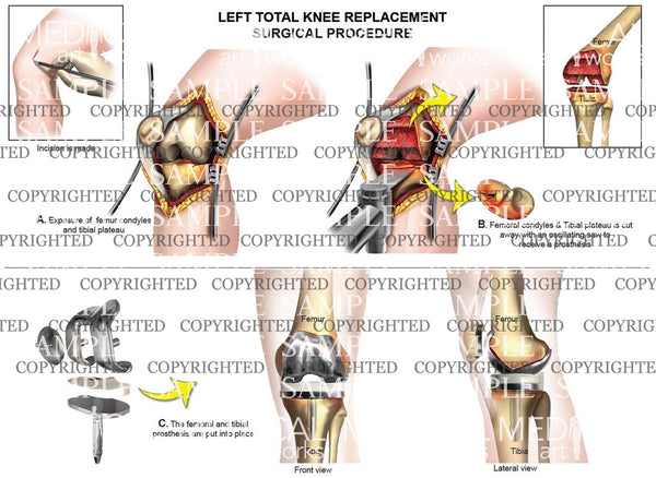 Left Knee Surgical procedure