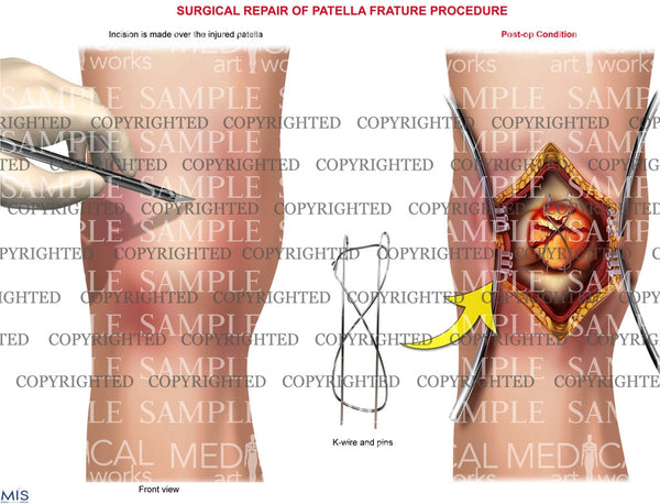 Right Knee patella frature procedure
