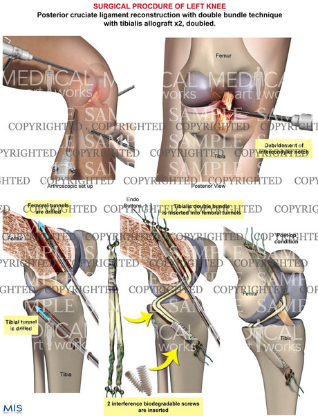 Surgical repair of posterior crutiate ligament tear
