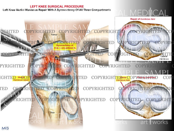 Left knee synovectomy and medial meniscus repair