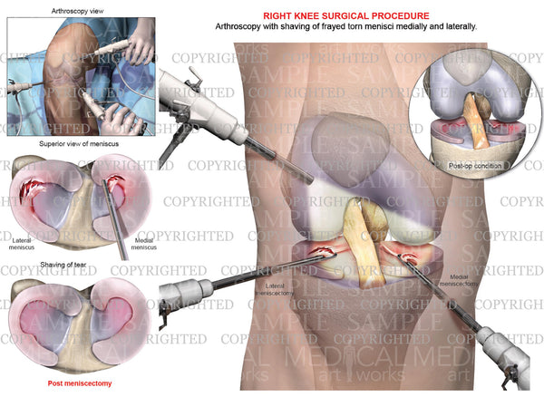 Right Knee Arthroscopy - Medial & Lateral Meniscectomy