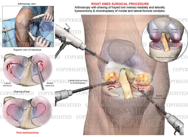 Right Knee Arthroscopy - Medial & Lateral Meniscectomy - Chondroplasty - Synovectomy