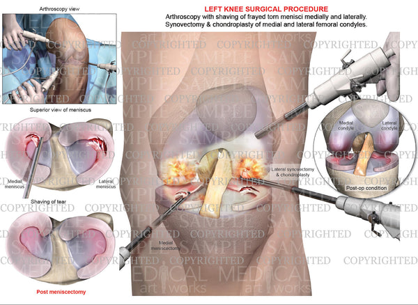 Left Knee Arthroscopy - Medial & Lateral Meniscectomy - Chondroplasty - Synovectomy