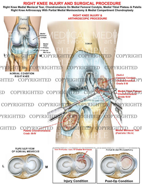 Right knee injury & arthroscopic surgical procedure - Meniscectomy - Chondroplasty