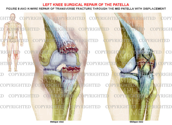 Left patella injury and figure 8 k-wire surgical procedure