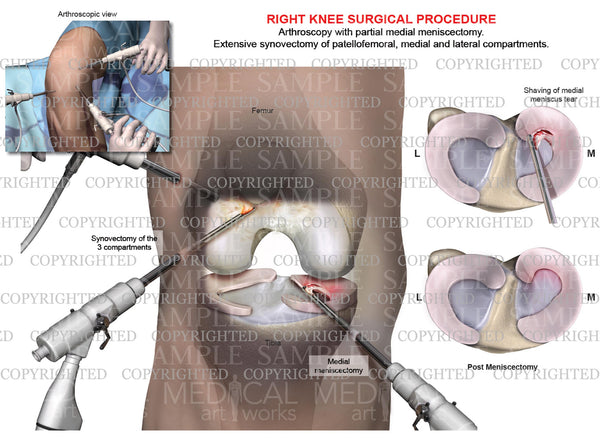 Arthroscopy of right knee with partial medial meniscectomy - tricompartmental synovectomy
