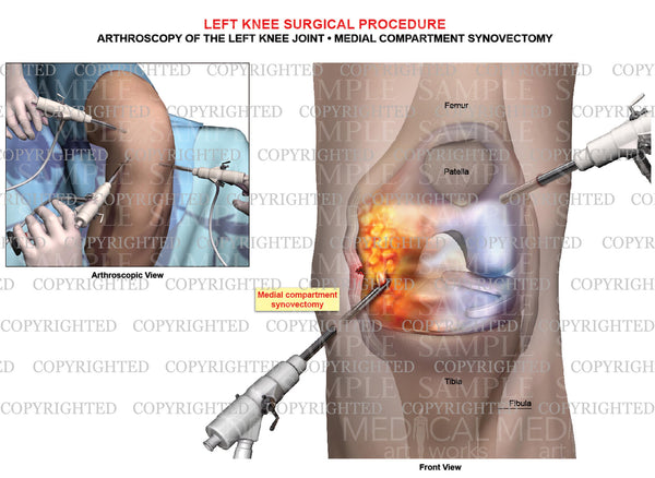 Arthroscopy of left knee joint - Medial synovectomy