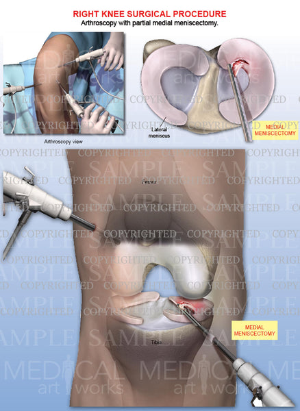 Right Knee Arthroscopy - Medial Meniscectomy