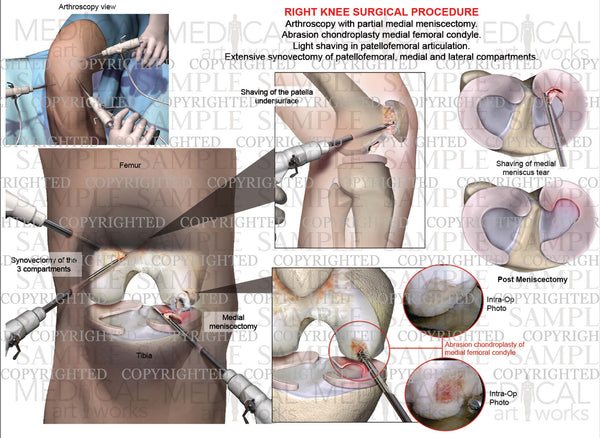 Right knee arthroscopic meniscus and femoral condyle surgery & abrasion chondroplasty