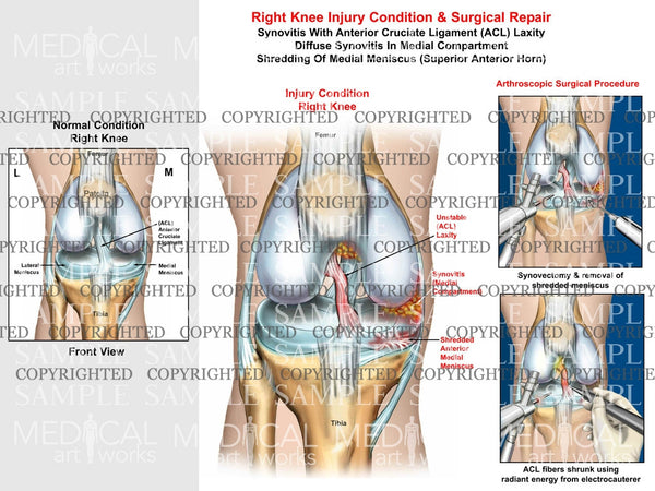 Right knee arthroscopic surgical procedure of synovitis, ACL laxity and medial meniscus