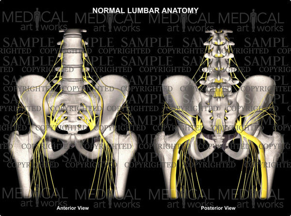 Lumbar Spine 3 level herniations