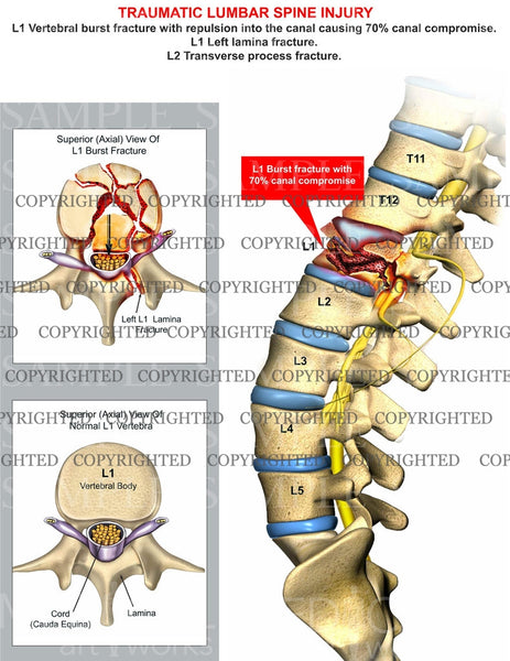 diagram of vertebral fracture diagram of inside of a 747 traumatic l1 burst fracture with canal compromise ...