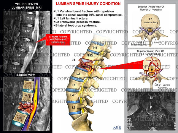 Lumbar spine fracture with MRI
