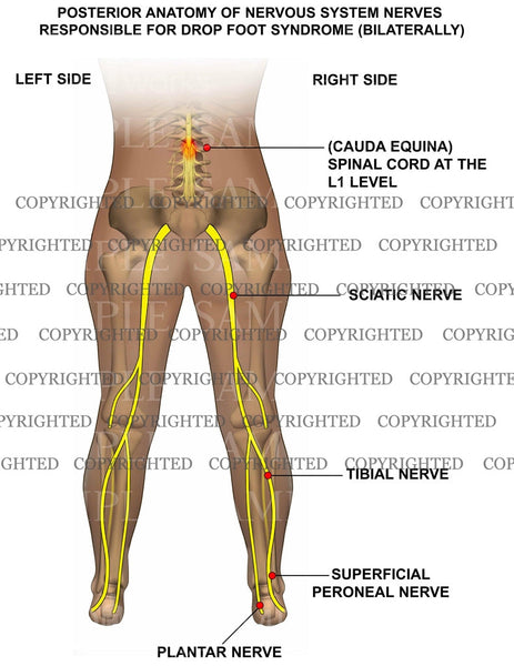 Lumbar nerves / foot drop