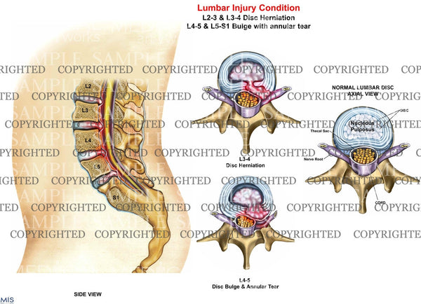 Lumbar injury condition