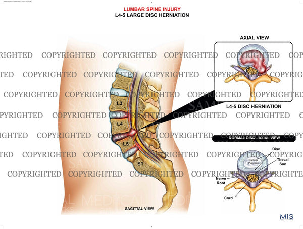 Lumbar spine large herniation