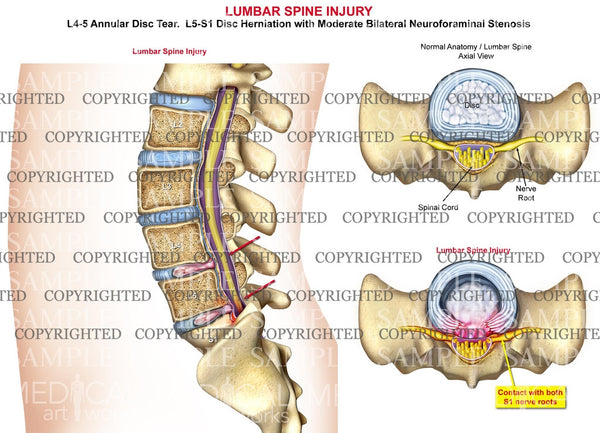 Lumbar Spine Injury - Disc herniation and stenosis
