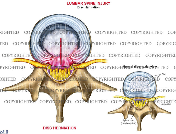 Lumbar standard disc herniation