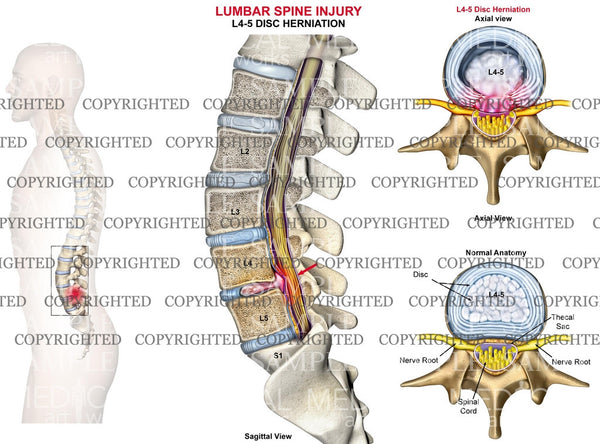 L4-5 Lumbar spine disc herniation - Male