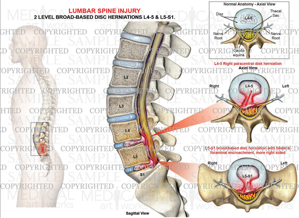 2 Level - L4-5, L5-S1 lumbar disc herniations